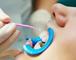 Что такое фторирование зубов? Плюсы и минусы