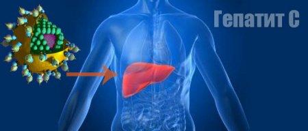 Что такое гепатит С, и чем страшна эта болезнь?