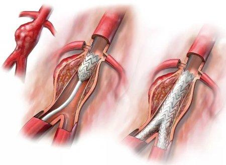Все про аневризму аорты