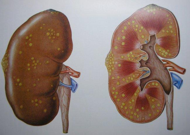 Кистоз почек - разновидности и методы лечения болезни