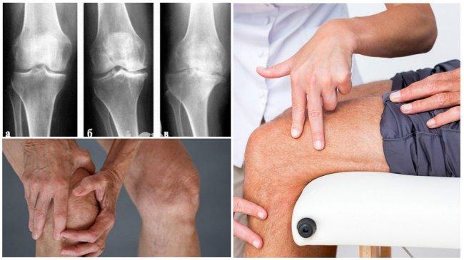 Консервативное лечение гонартроза (артроза коленного сустава)
